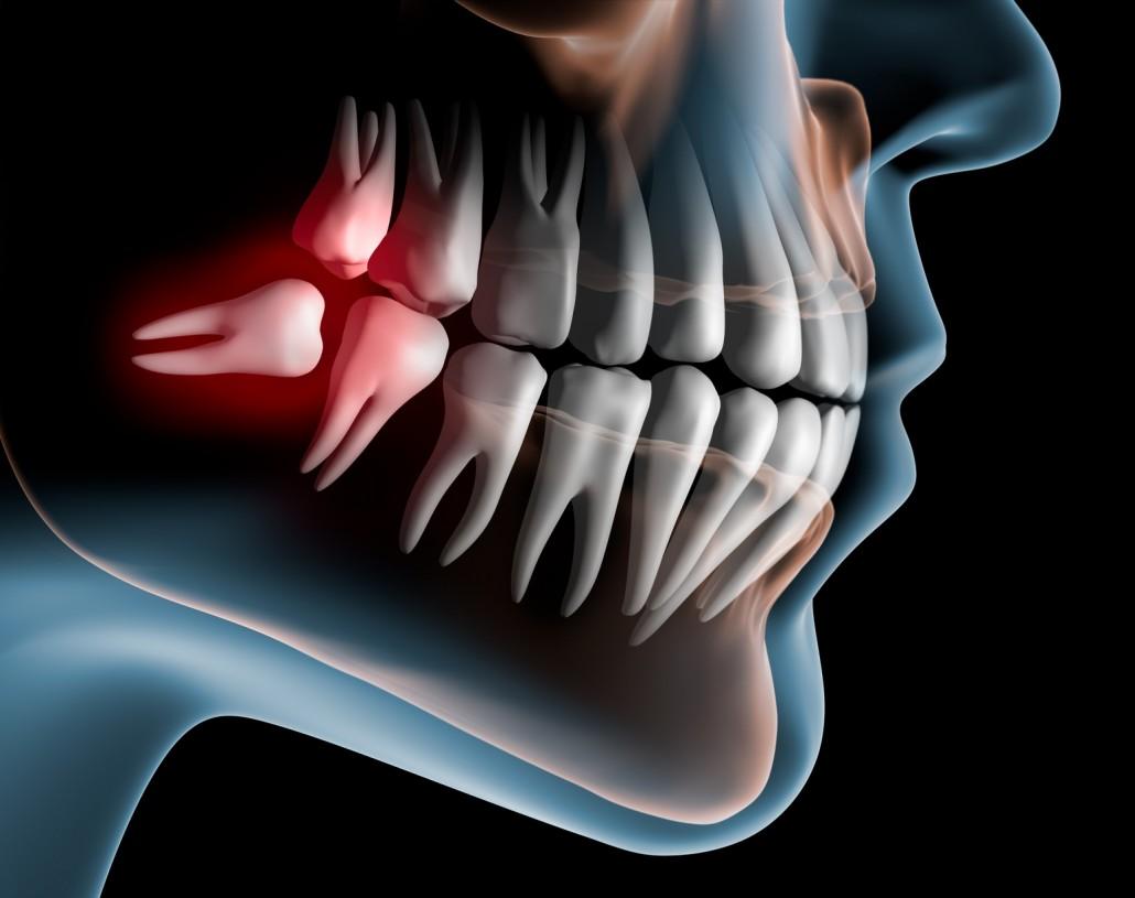 Buco maxilo facial